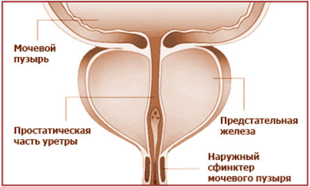 пластырь для лечения простатита и аденомы простаты